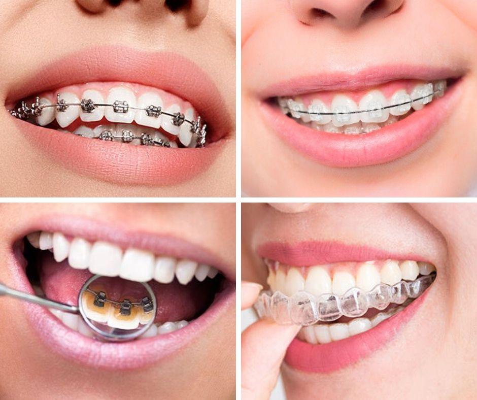Tipos de Ortodoncia - Alcantarilla, Murcia | Clínica Dental Dra. Ana Belén Martínez