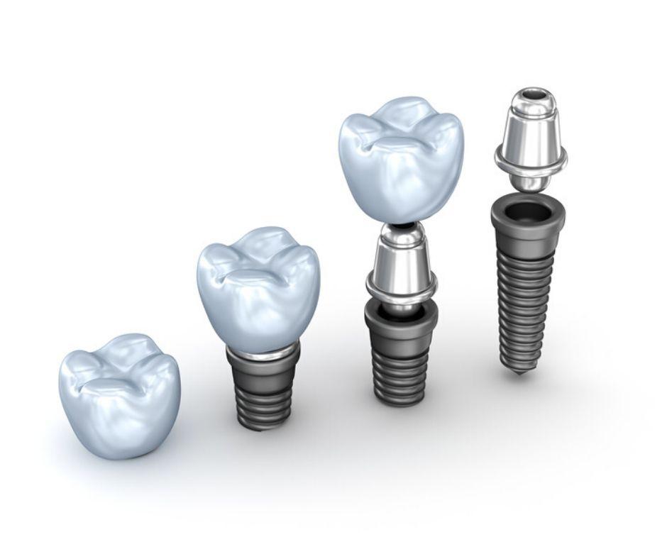 Tipos de Implantes Dentales - Alcantarilla | Clínica Dental Dra. Ana Belén Martínez