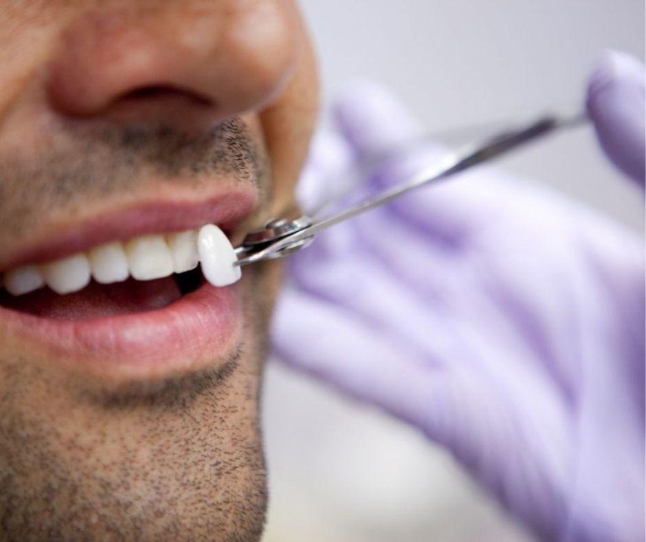 Carillas Estéticas en Alcantarilla | Clínica Dental Dra. Ana Belén Martínez