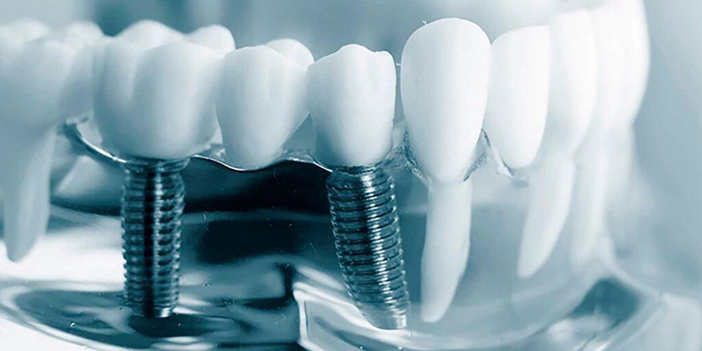 Implantes Dentales en Alcantarilla, Murcia | Clínica Dental Dra. Ana Belén Martínez