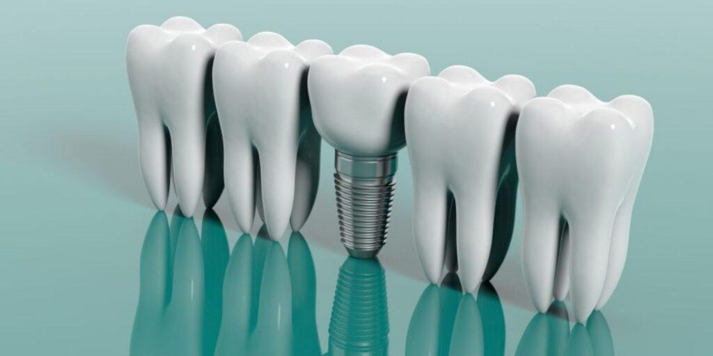 Implantólogo Dental - Alcantarilla - Murcia | Clínica Dental Dra. Ana Belén Martínez