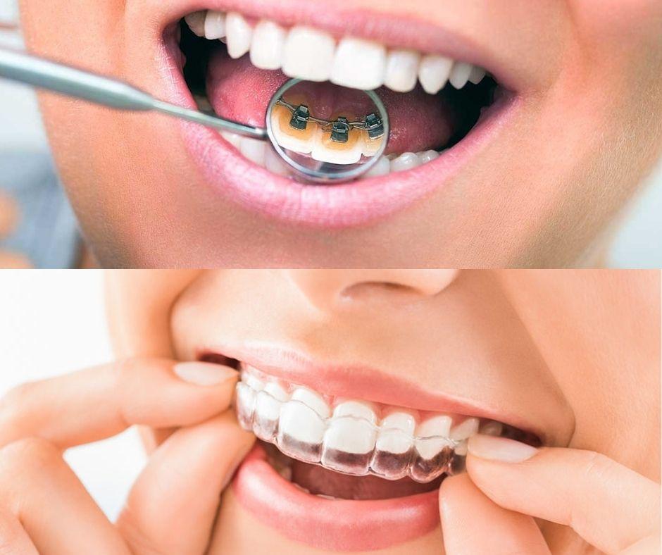 Tipos de Ortodoncia Invisible - Alcantarilla - Murcia | Clínica Dental Dra. Ana Belén Martínez