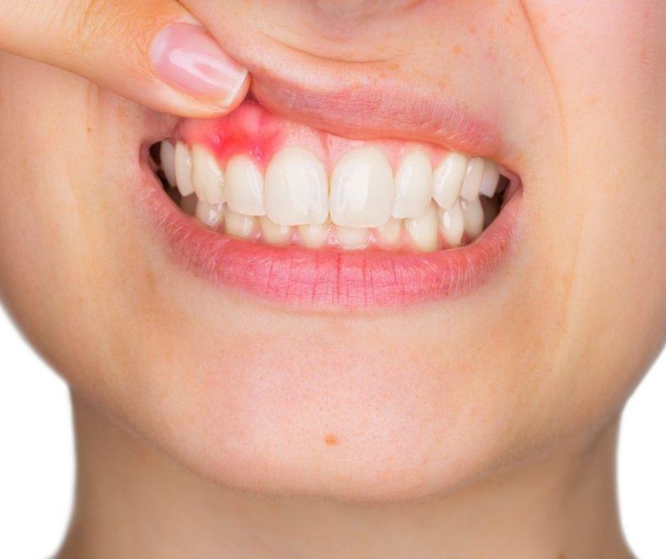Causas del Sangrado de Encías - Alcantarilla - Clínica Dental Dra. Ana Belén Martínez