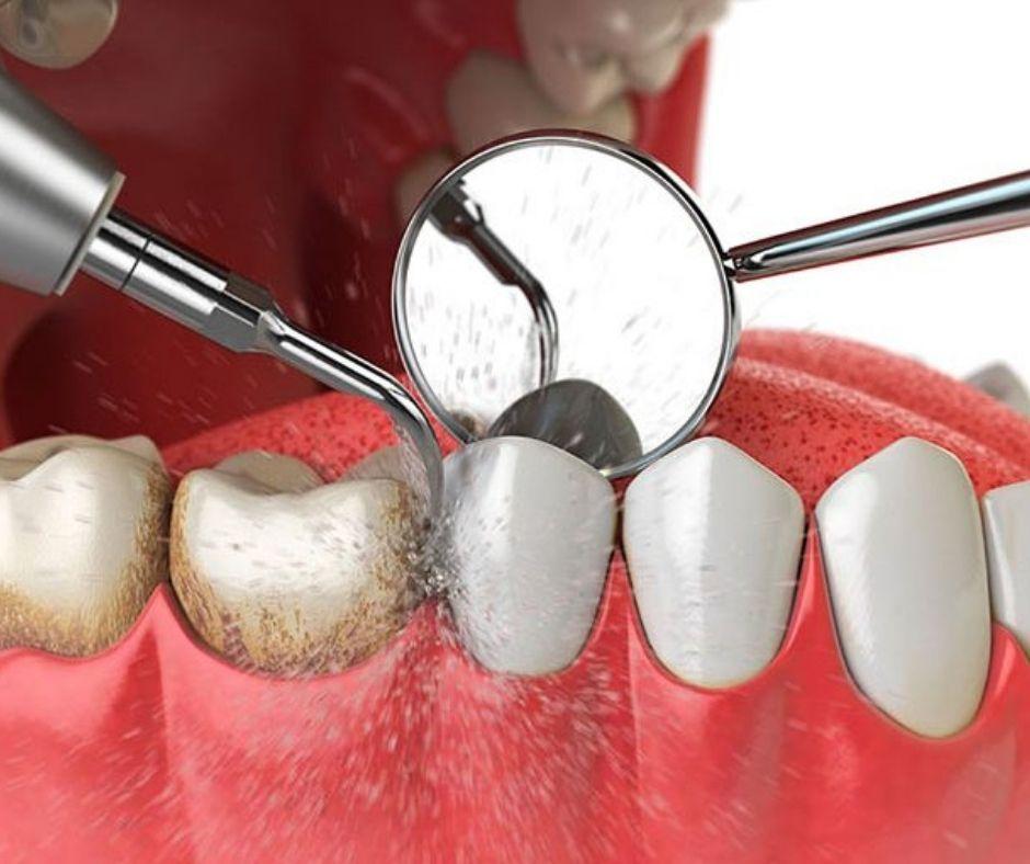 Curetaje Dental - Alcantarilla   Clínica Dental Dra. Ana Belén Martínez