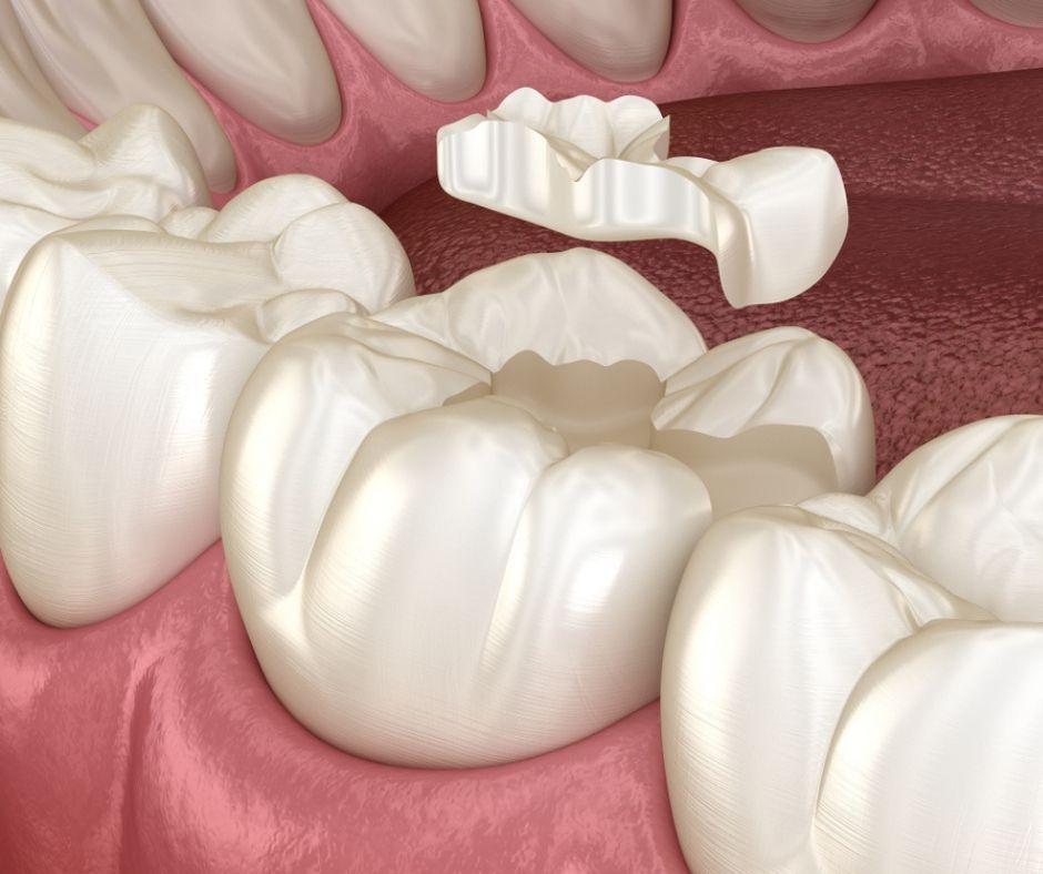 Incrustaciones Dentales - Alcantarilla | Clínica Dental Dra. Ana Belén Martínez