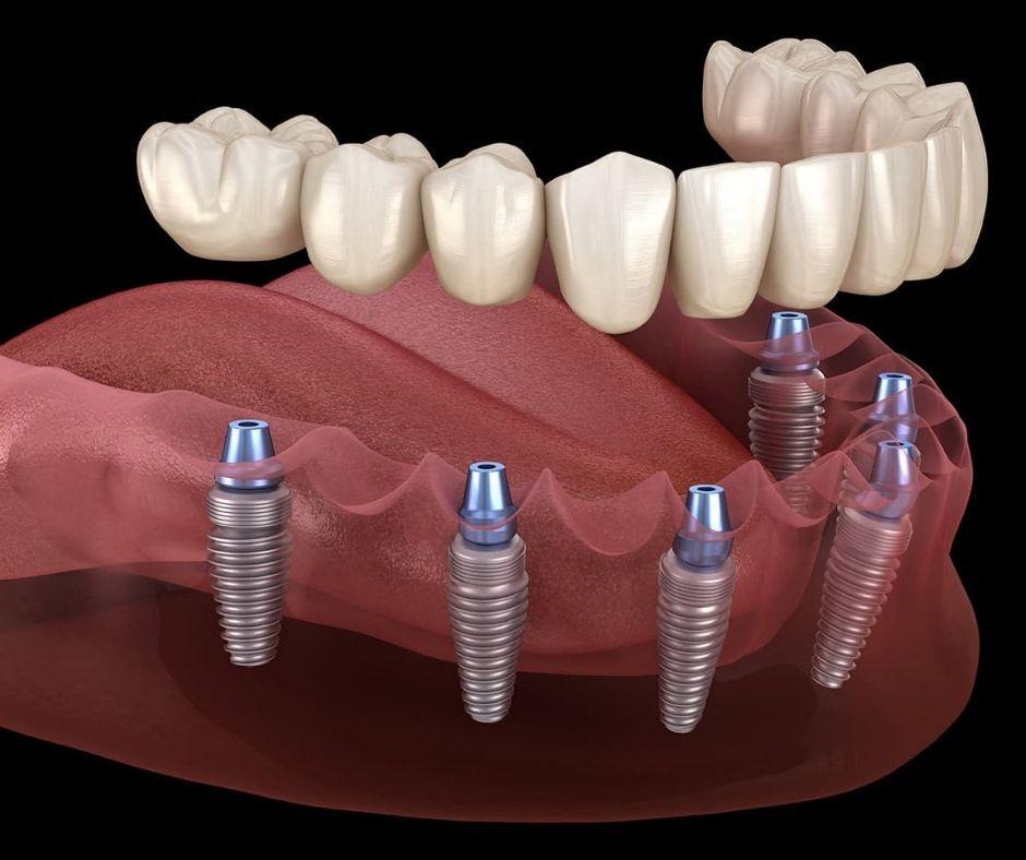 Implantes con Carga Inmediata - Alcantarilla | Clínica Dental Dra. Ana Belén Martínez